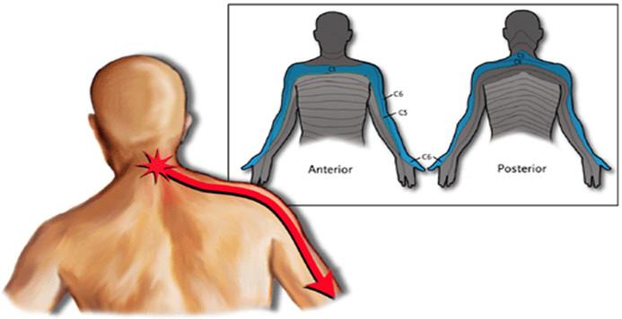 Cervico brachialgia