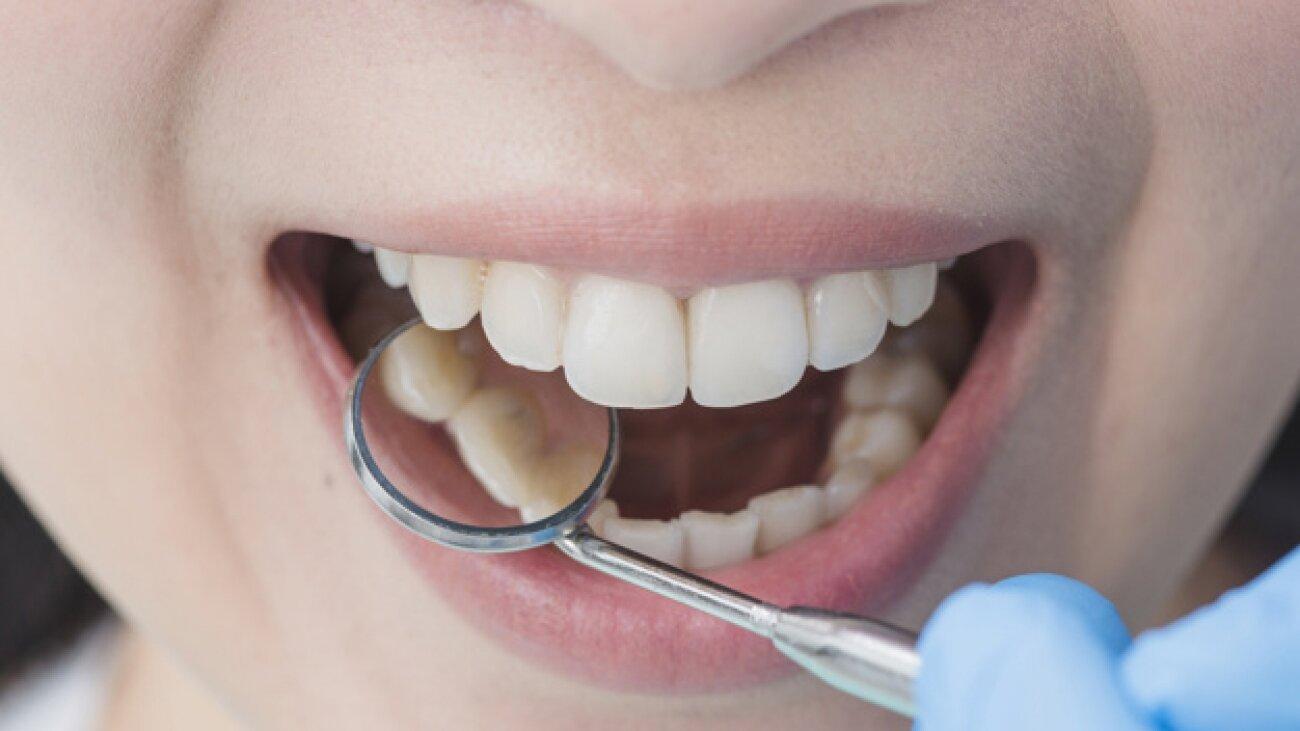 Devitalizzazione del Dente