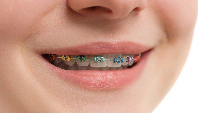 apparecchio denti bambini