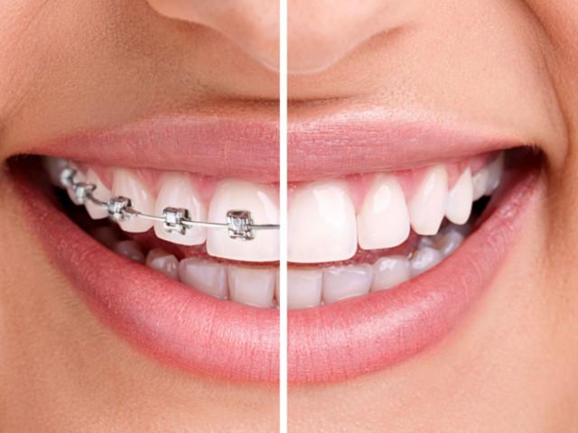 come pulire apparecchio denti