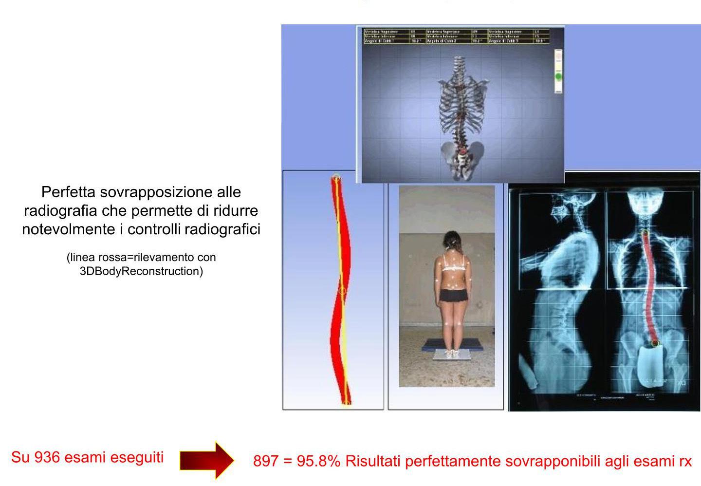 confronto radiografico