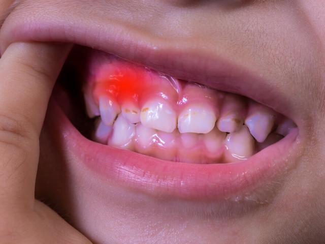 Denti inclusi nei bambini: cause e rimedi