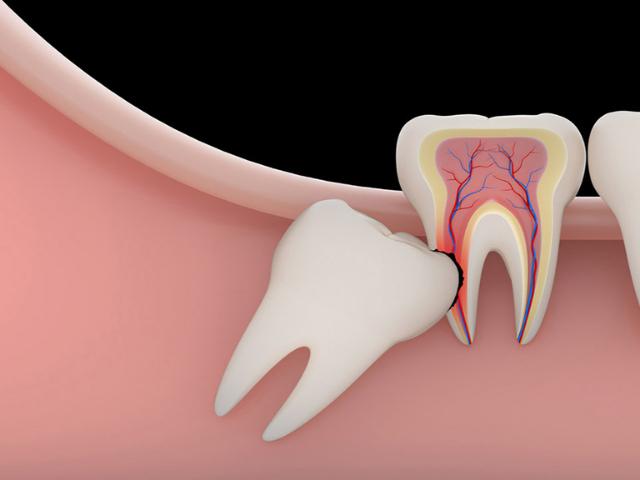 denti inclusi nei bambini quali sono le cause