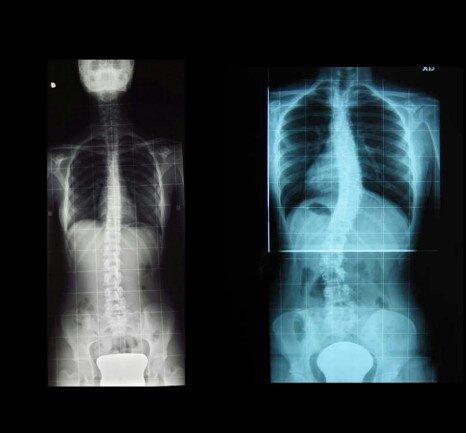 dolori alla schiena radiografia