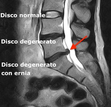Esame diagnostico per il mal di schiena
