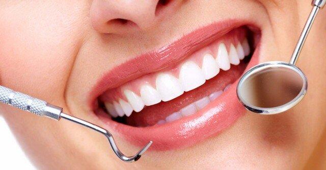Igiene orale e carie