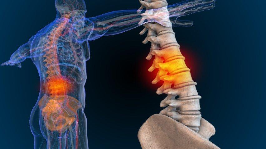 mal di schiena spina dorsale