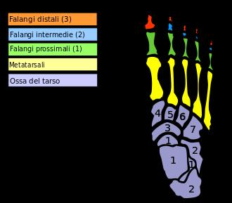 metatarsalgia piede