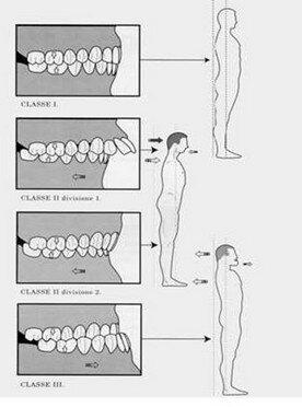 odotoiatria sport denti