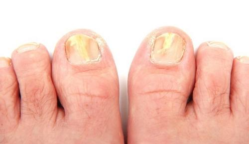 onicomicosi piede