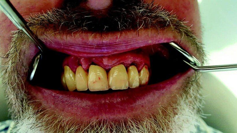 parodontite cura