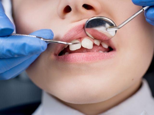 perche rivolgersi al dentista