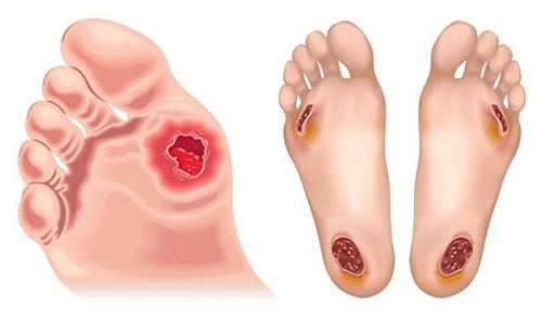 piede diabetico cure