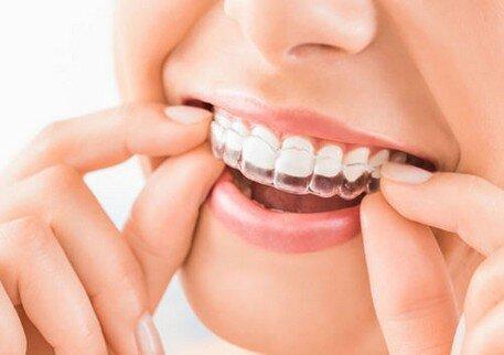 protezione odotoiatria sport denti