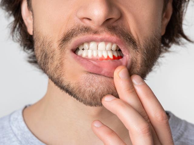 Pulpite dentale: cos'è e come curarla
