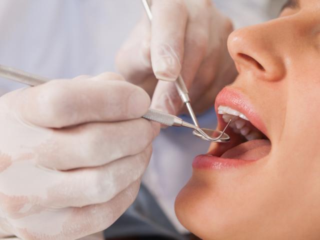 pulpite dentale