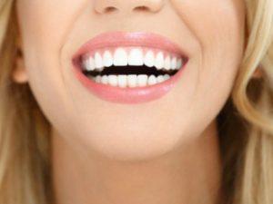 Sbiancare i denti velocemente grazie all'ablazione del tartaro