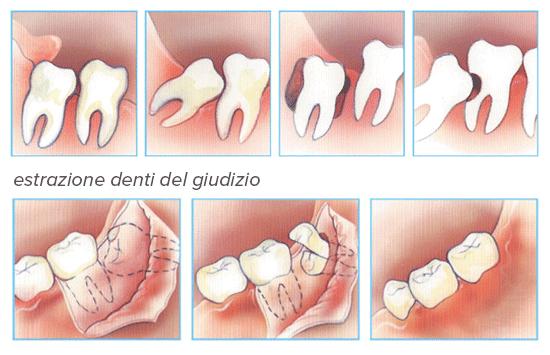 estrazione denti del giudizio