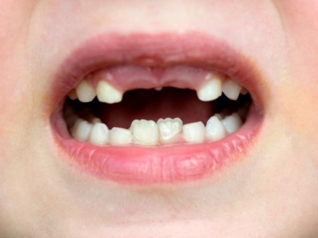 sviluppo e caduta dei denti da latte