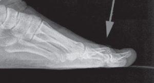 diagnosi dita a martello
