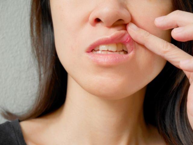 Afte in bocca: cause e rimedi