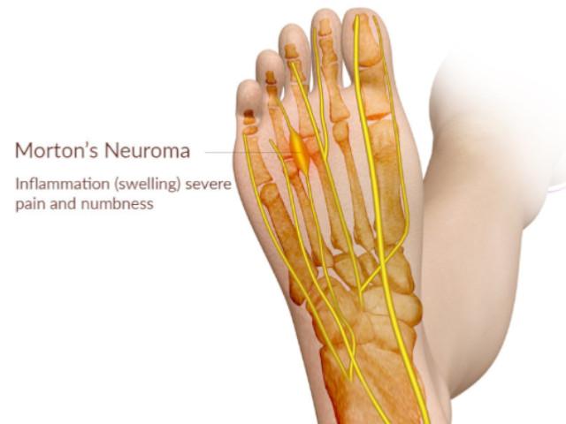 anatomia neuroma di morton
