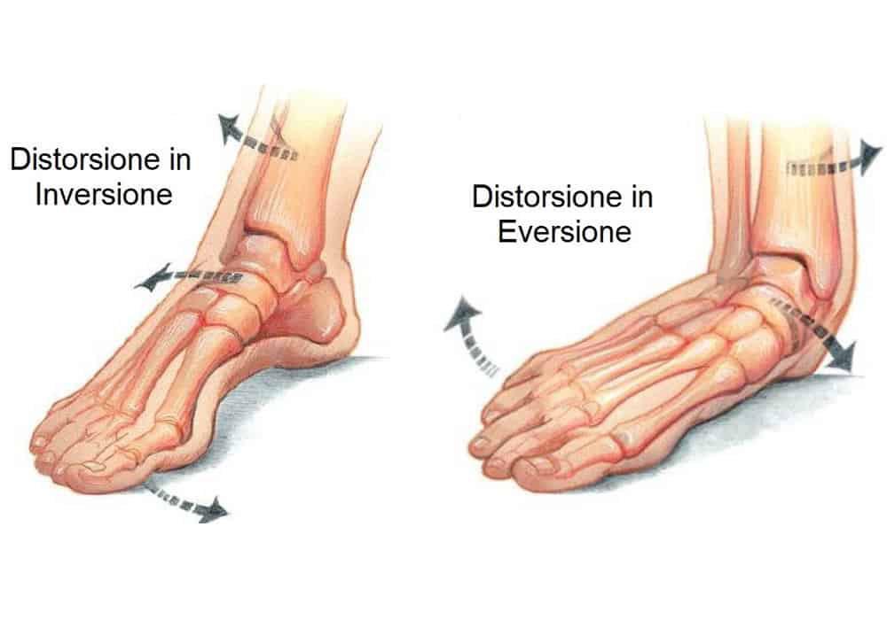 cause instabilità cronica della caviglia