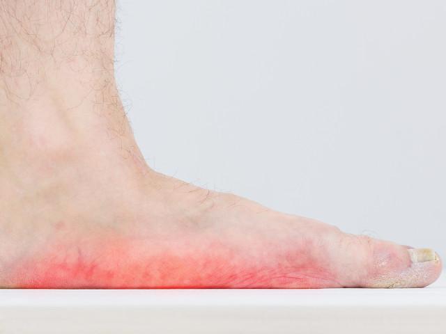 cause del piede piatto