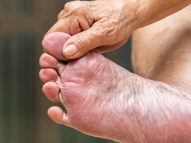 cos'è il piede ischemico