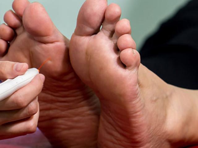 cos'è il piede neuropatico