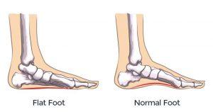 cos'è il piede piatto