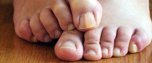 infezioni dermatofitiche