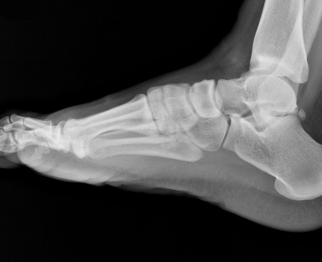 instabilità funzionale della caviglia