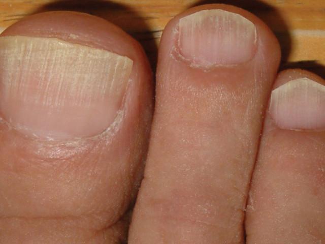 Linee sulle unghie: perchè compaiono?