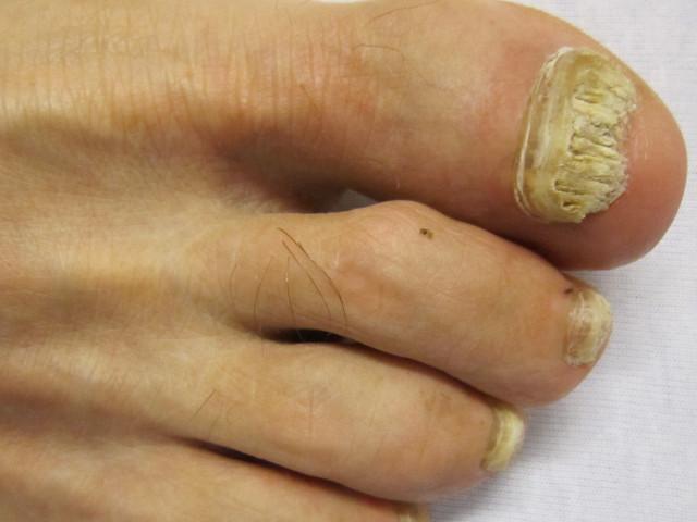 Micosi dell'unghia: come trattarla con il laser