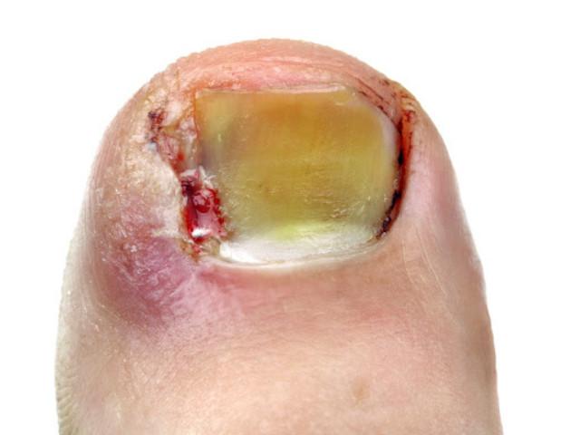 Unghia incarinita (onicocriptosi): conosci questa patologia?
