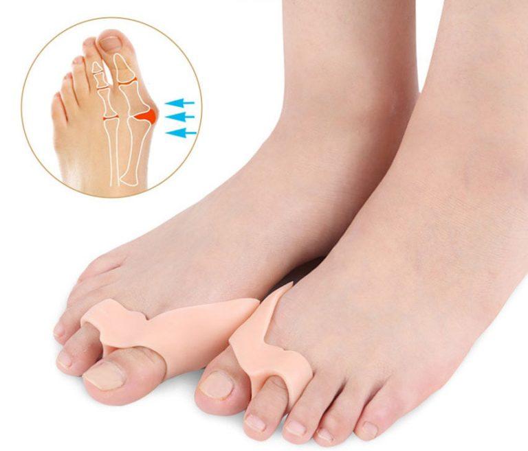 Ortesi in silicone (ortoplastia): correggere le deformità si può