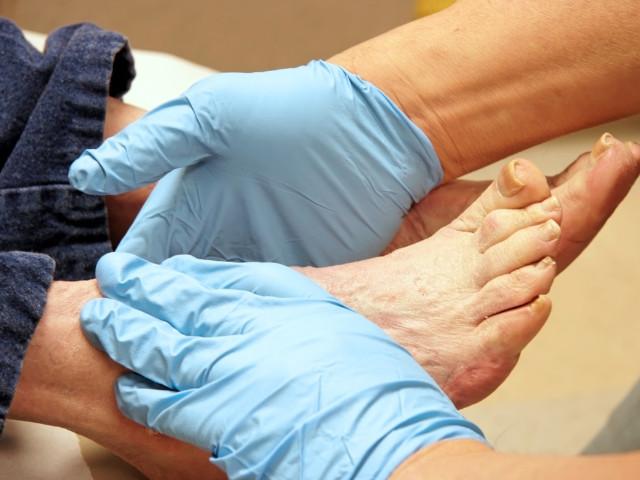 piede neuropatico