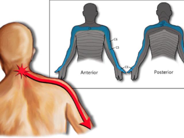 sintomi cervicale