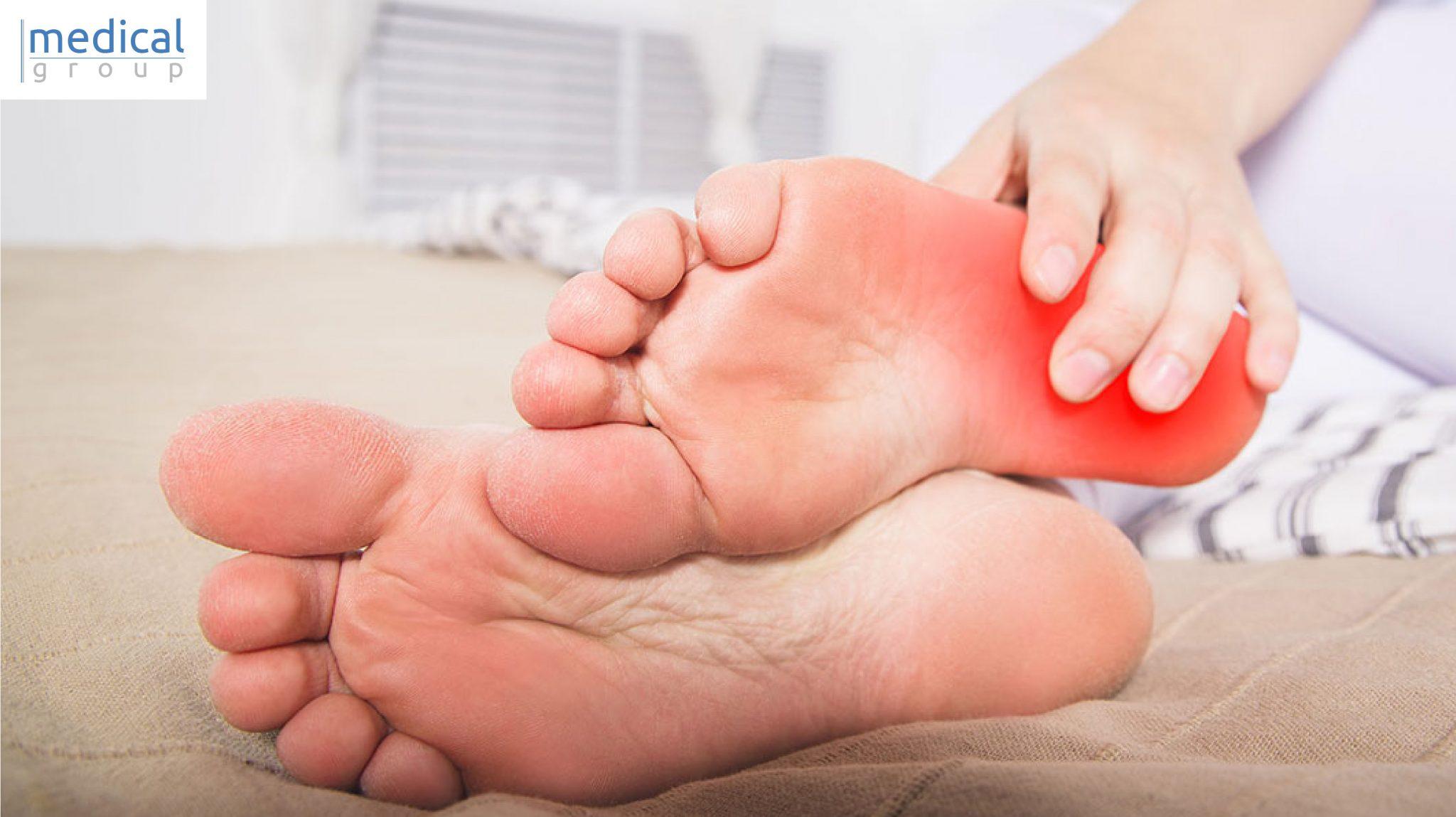 sintomi spina calcaneare