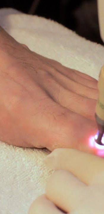 terapia laser onicomicosi