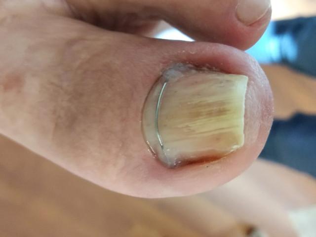 Trattamento ortesico: come rieducare l'unghia a non incarnirsi