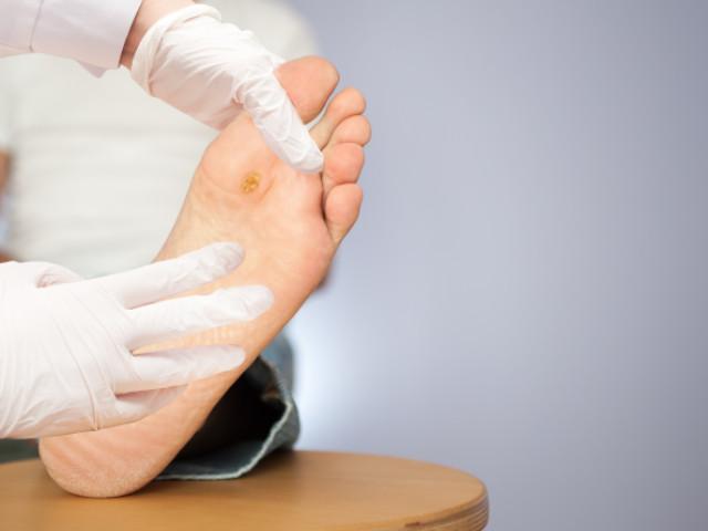 verruca del piede