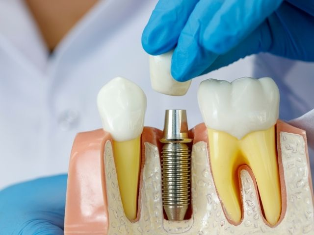 Cos'è l'implantologia a carico immediato?