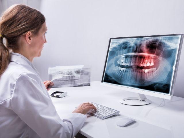 Estrazione denti del giudizio: quando é necessario?
